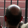Eintracht frisst die letzten Haare vom Kopf!